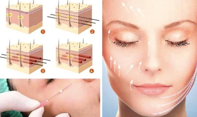 Lợi ích khi căng da mặt bằng chỉ
