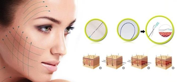 Chăm sóc da mặt sau phẫu thuật nâng cơ mặt