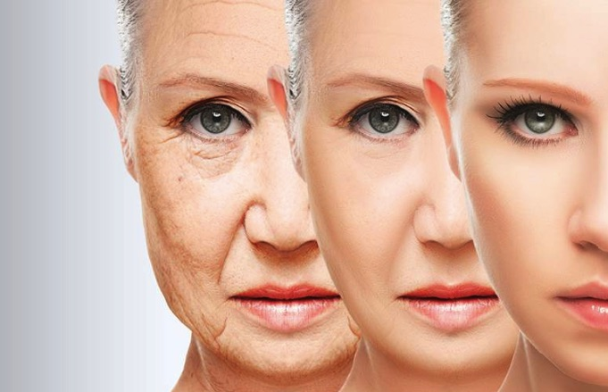 Căng da mặt bằng loại chỉ phẫu thuật nào